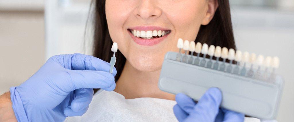 corona dental sanadent