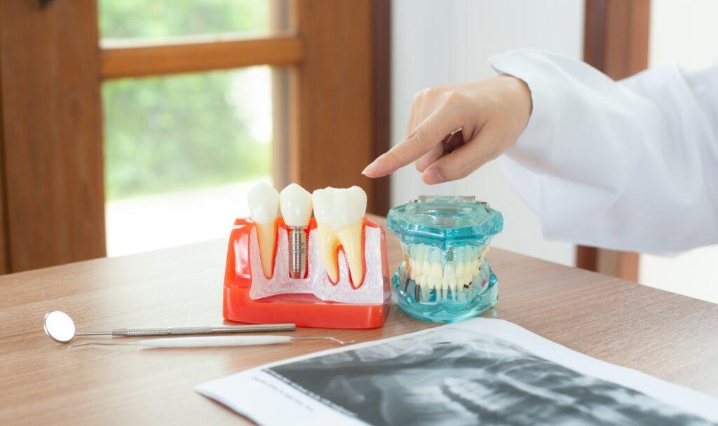 Maqueta de implantes dentales