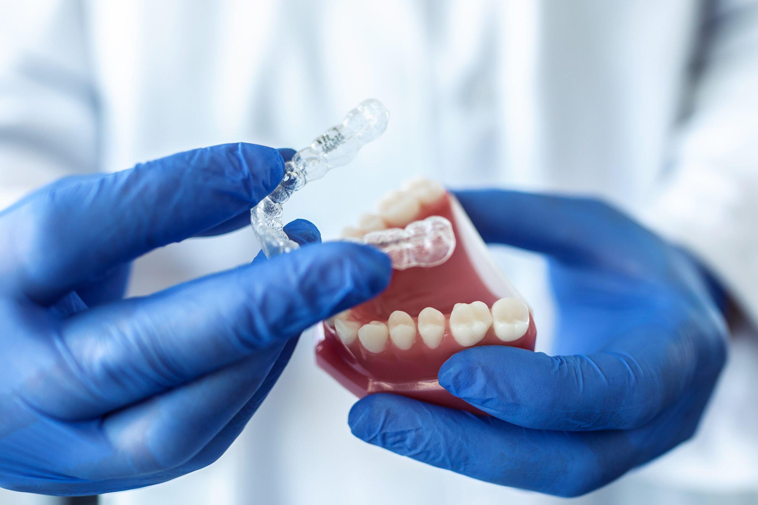 Prueba de ortodoncia invisible en molde
